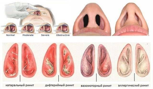 Аллергический отек носа: как, чем снять сильный ринит при аллергии?