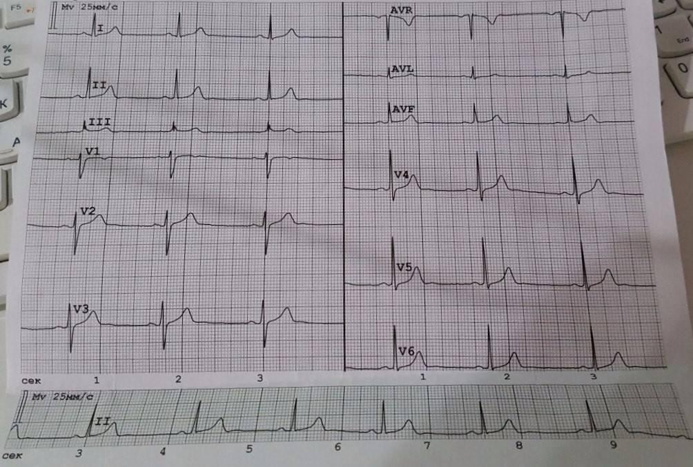 Нарушение внутрижелудочковой проводимости сердца у взрослых и детей: что это такое, симптомы и лечение, возможные последствия