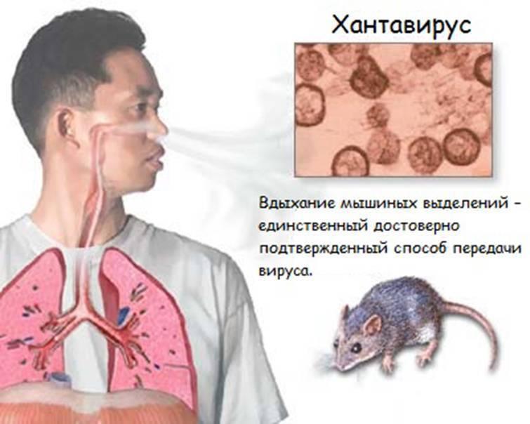 Мышиная лихорадка: симптомы у женщин, мужчин и детей