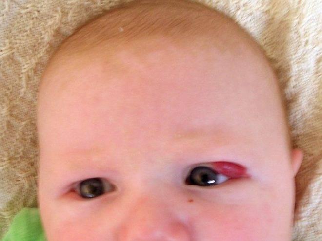 Гемангиома у новорожденных – причины возникновения и методы лечения