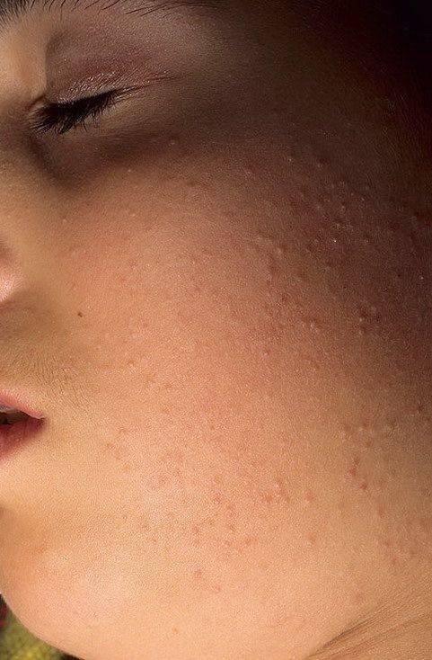 Сыпь типа гусиная кожа у детей