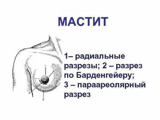 Лечение мастита грудницы у кормящих народными средствами