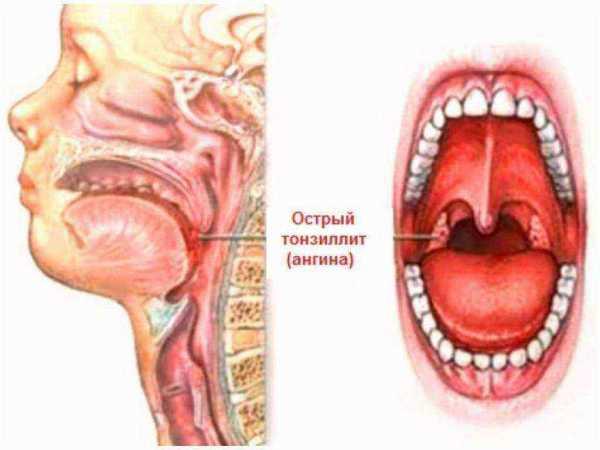 Стоматит в горле у ребенка и взрослого