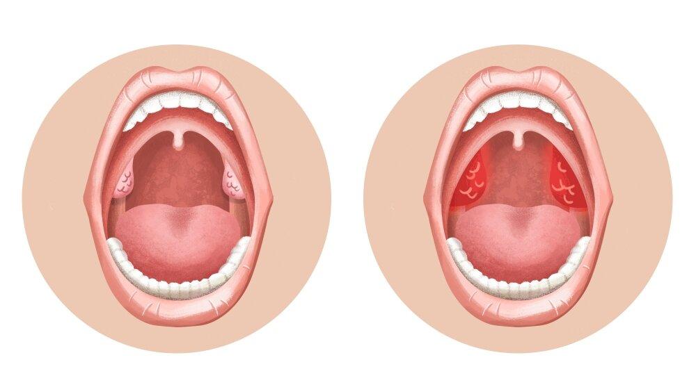Герпес в горле у детей и его лечение