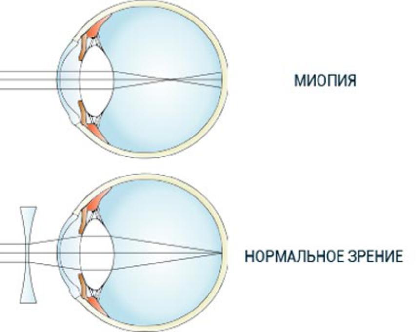 Чем опасен гиперметропический астигматизм и нужно ли его лечить?