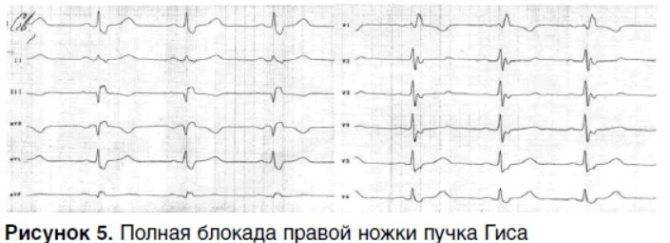 Заключение экг нарушение внутрижелудочковой проводимости что это такое