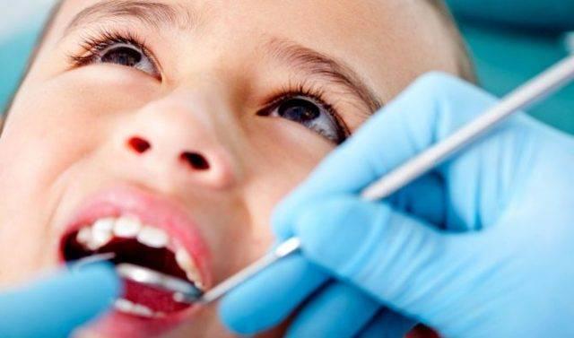Пульпит молочных зубов у детей: лечение, этапы удаления | spacream.ru