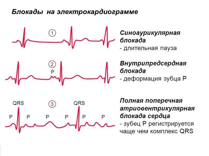 Нарушение внутрижелудочковой проводимости — лечение заболевания | dlja-pohudenija.ru
