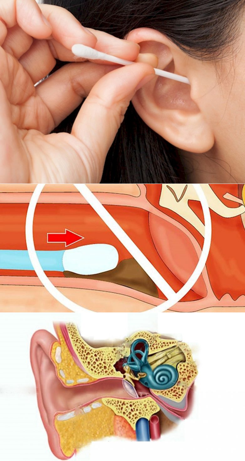 Почему идет кровь из уха