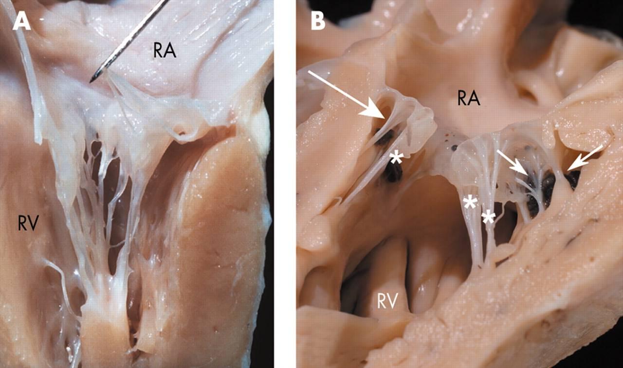 Дополнительная хорда левого желудочка у ребенка - здоров.сердцем
