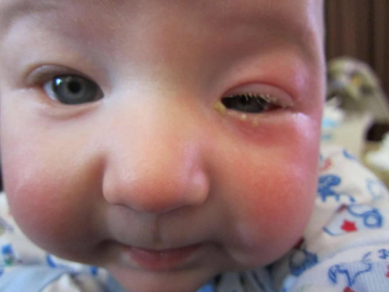 Дакриоцистит у новорожденных: симптомы и методы лечения