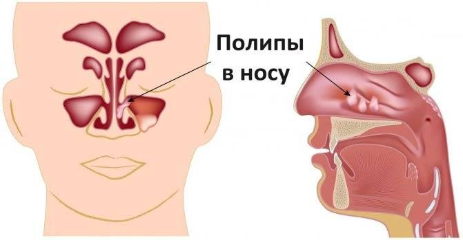 Полипы в носу у детей: симптомы, лечение, как выглядят, что делать