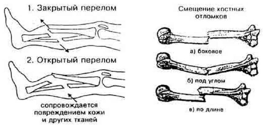 Переломы костей у детей. симптомы, причины и лечение переломы костей у детей - zbibiz