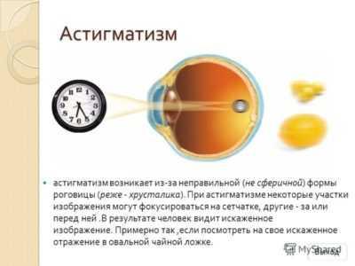 Смешанный астигматизм у детей — причины, симптомы и лечение