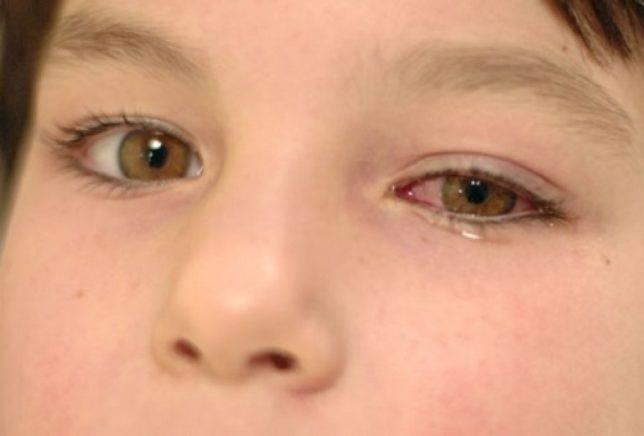 Правила лечения конъюнктивита у детей