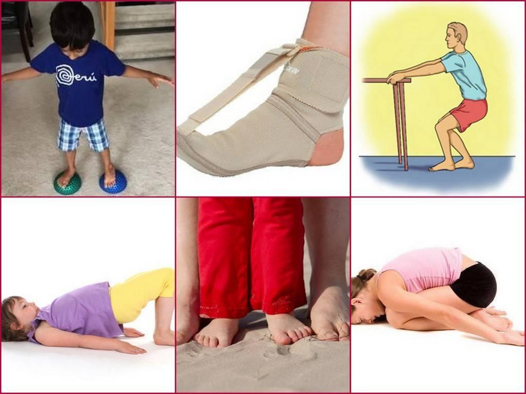 Упражнения при плоскостопии у детей и взрослых: комплекс лфк для профилактики плоскостопия, лечебная гимнастика и зарядка | ревматолог