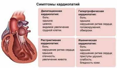 Кардиопатия у детей: виды, симптомы и диагностика