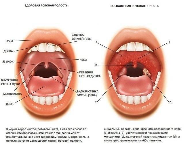 Хронический тонзиллит у детей: причины, лечение, народные средства, операция по удалению
