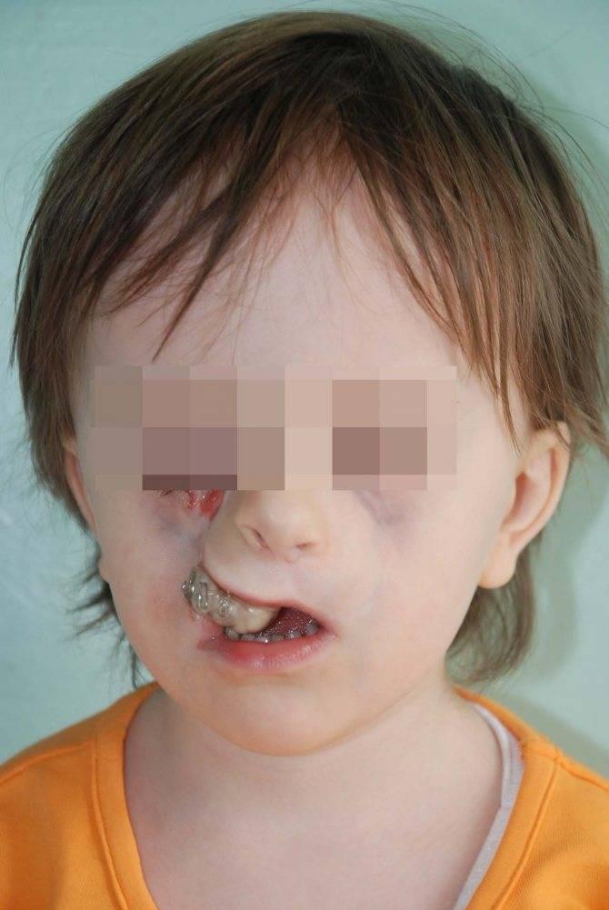 Волчья пасть у детей и заячья губа: причины патологий, фото до и после операции