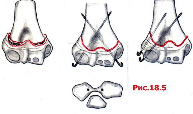 Перелом чрезмыщелковый перелом плечевой кости со смещением у детей