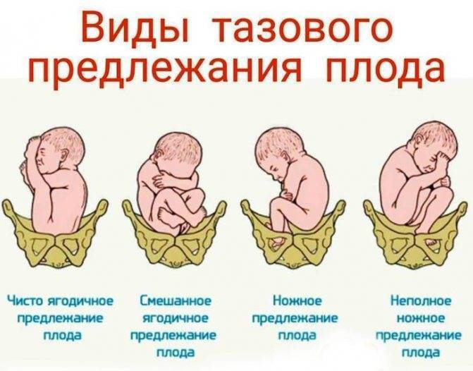 Что означает поперечное положение плода при беременности?