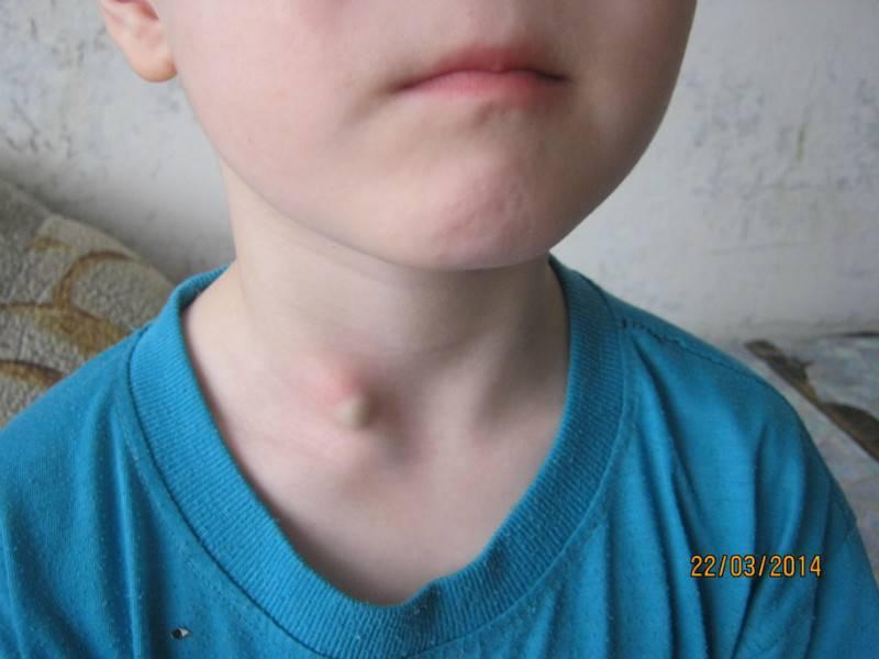 Шарик на шее под кожей у ребенка - врачебный метод