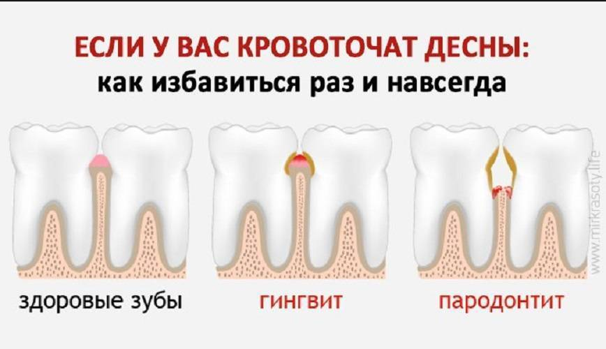 Кровоточат десна при беременности - что делать при гингивите и чем лечить? | spacream.ru