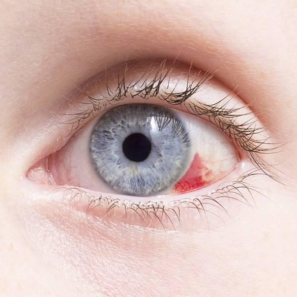 У ребенка при простуде гноятся глаза – причины и лечение