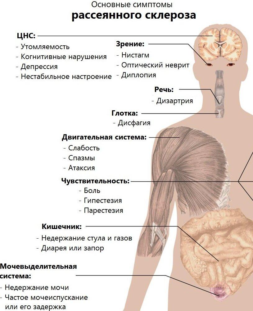 Нейробластома у детей: симптомы и причины, стадии, выживаемость и прогноз