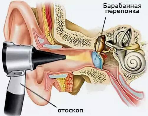Шунтирование ушей у детей послеоперационный период