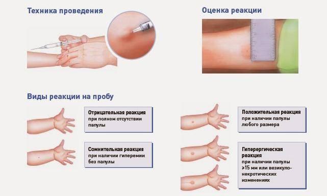 Что означает отсутствие следа после прививки манту?