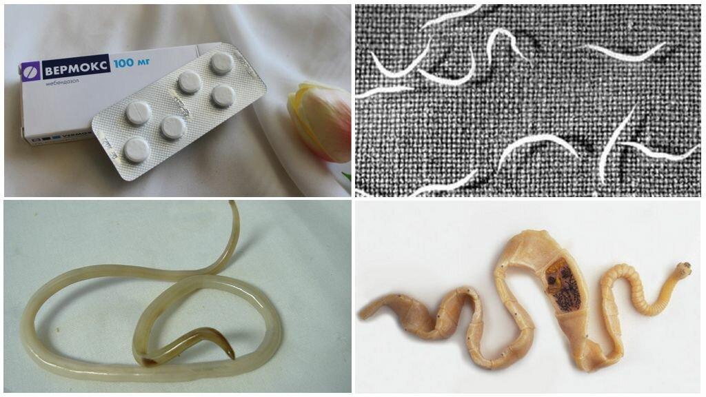 Как избавиться от остриц в домашних условиях - народные средства и лекарства от паразитов