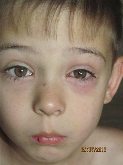 У ребенка зеленые сопли и гноятся глаза