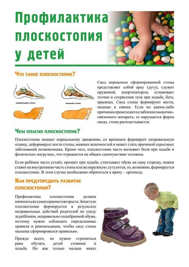 Плоскостопие у детей лечение в домашних условиях