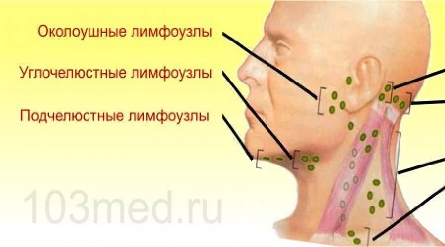 Затылочные лимфоузлы: расположение, воспаление, увеличение