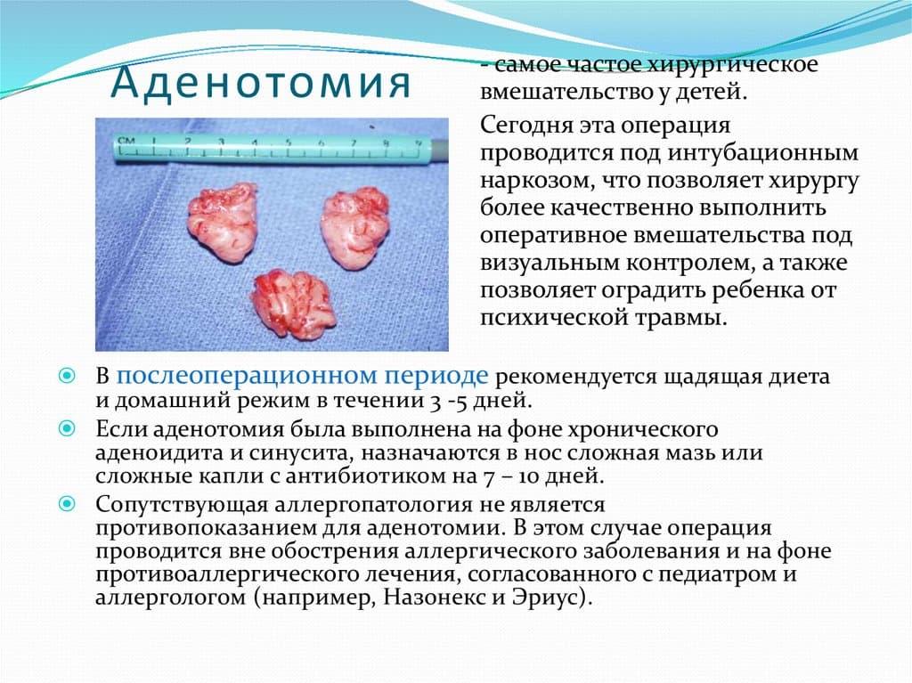 Послеоперационный период после удаления аденоидов у детей pulmono.ru послеоперационный период после удаления аденоидов у детей