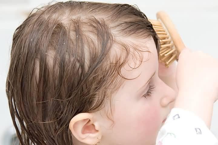 У ребенка выпадают волосы причины комаровский