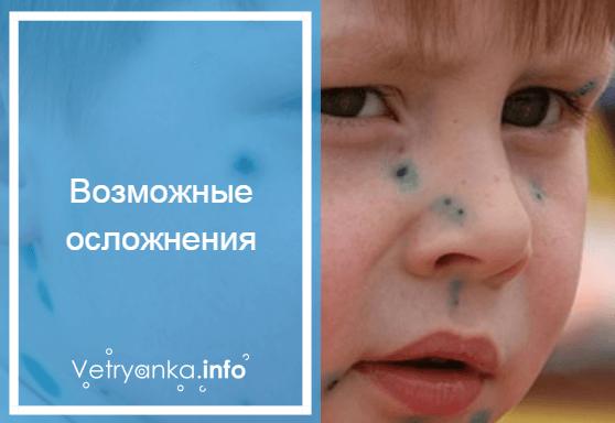 Чем обрабатывать ветрянку во рту у ребенка — 15 эффективных средств