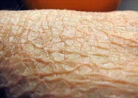 Врожденный ихтиоз. ихтиоз кожи у новорожденных детей: опасно ли это заболевание, что делать и как лечить малыша - my site
