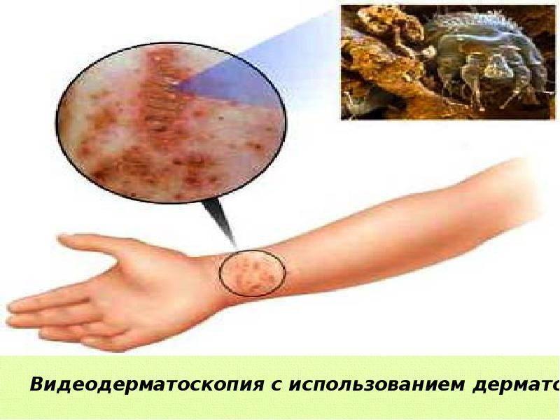 Чесотка: симптомы, фото, первые признаки у детей, профилактика