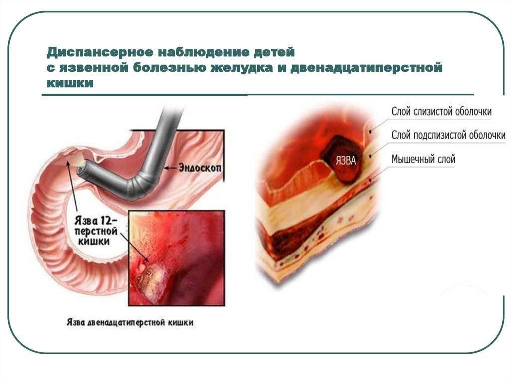 Язва желудка и двенадцатиперстной кишки - симптомы | компетентно о здоровье на ilive