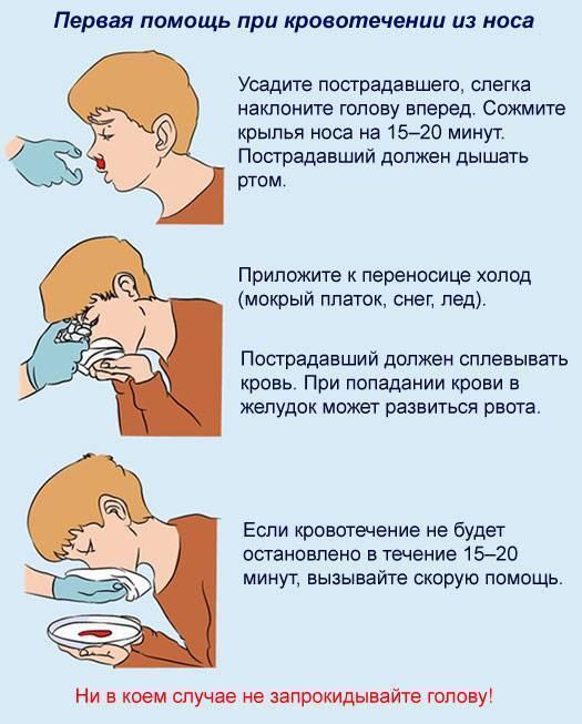 Как остановить кровь из носа у ребенка: носовое кровотечение в домашних условиях