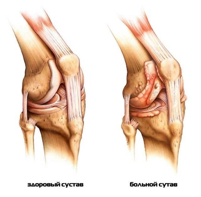Артрит коленного сустава у ребенка: лечение и причины ювенильного детского артрита