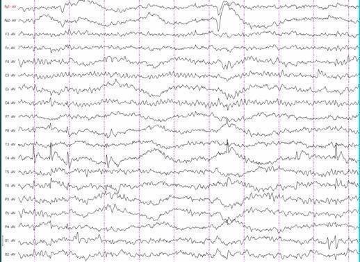 Эпилепсия — что это за болезнь: причины возникновения, диагностика и лечение