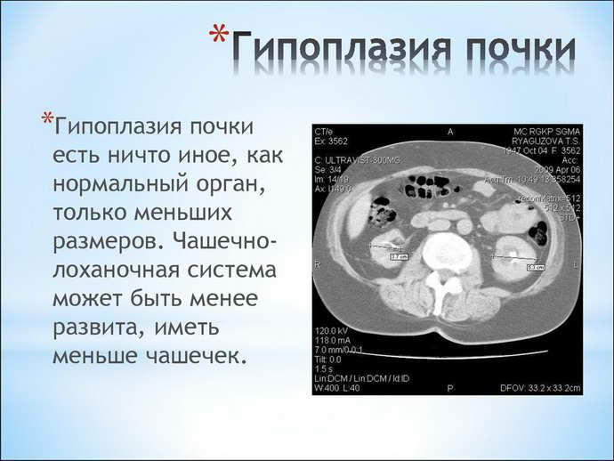 Гипоплазия почки у ребенка и взрослого: лечение, причины