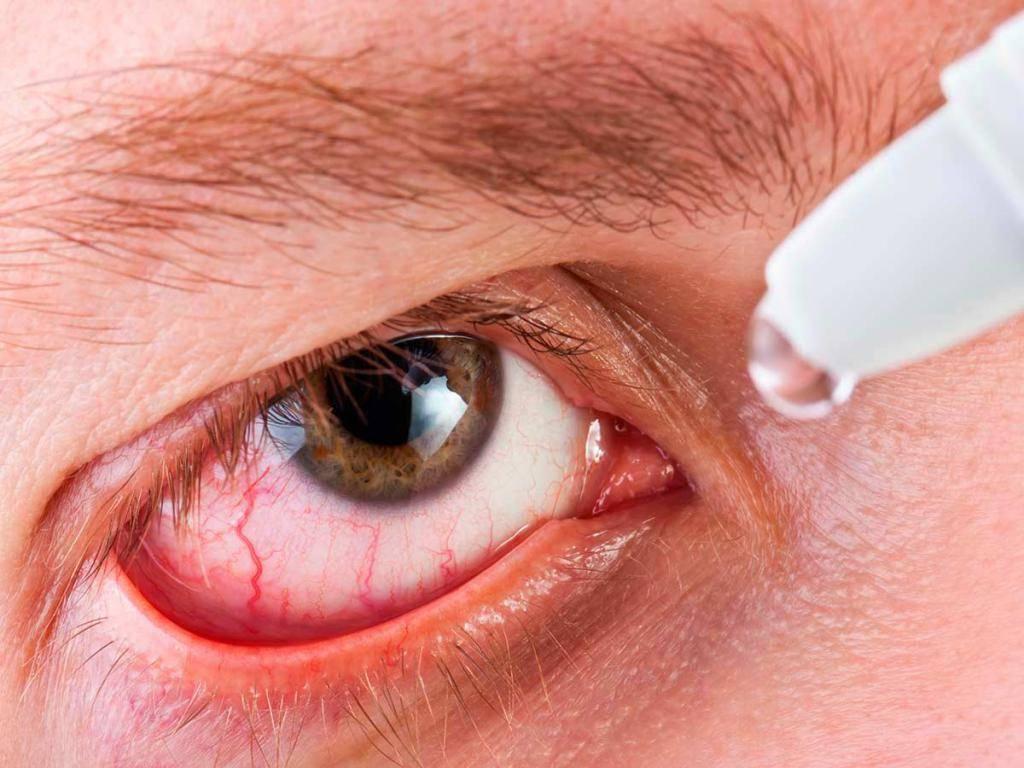Покраснение  глаза - детские  болезни:  как лечить