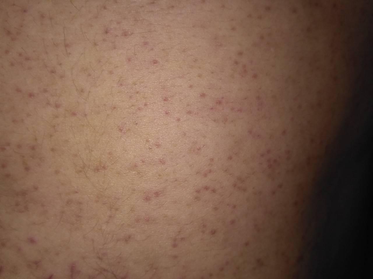 Сыпь на спине у ребенка (20 фото): причины красных высыпаний - пояснения