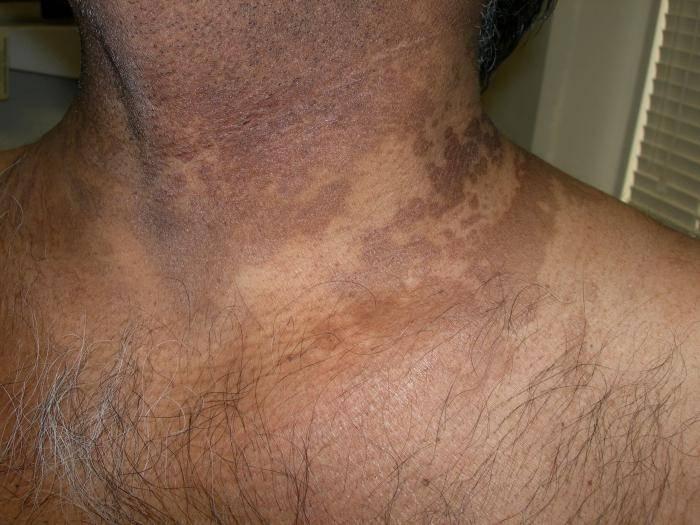 Методы и особенности лечения отрубевидного лишая