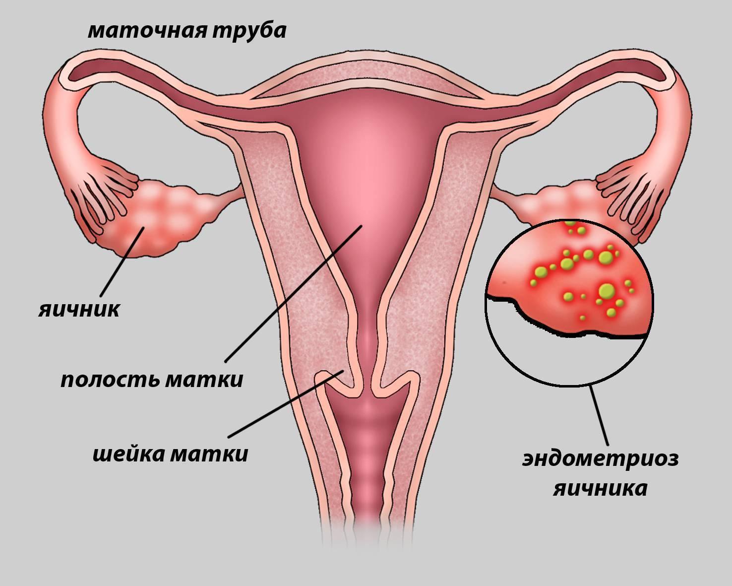 Киста яичника при беременности возможна эндометриоидная: что делать