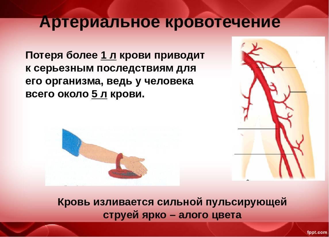 Как отличить месячные от кровотечения - рассказывает гинеколог